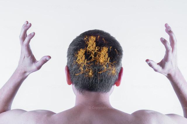 Feuer auf dem Kopf | Konzept einer extrem juckender und brennender Kopfhaut bei einem Mann