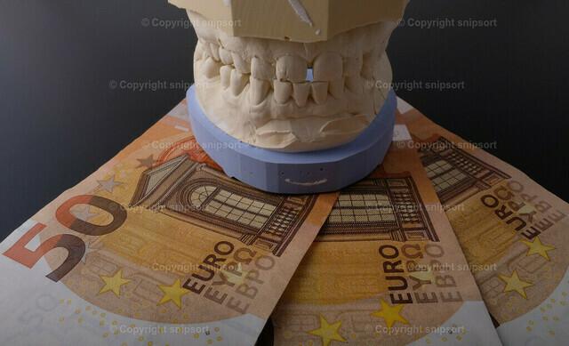 Gipsgebiss auf Geldscheinen | Gebiss auf 50-Euro-Scheinen als Konzept für teuere Behandlung
