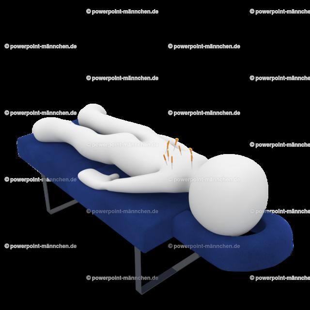 get acupuncture treatment   Quelle: https://3dman.eu   Jetzt 250 Bilder kostenlos sichern